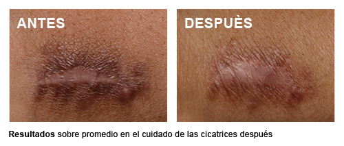 Scar Control - Promedio después del procedimiento las cicatrices